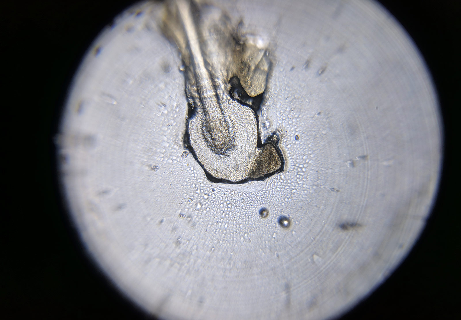 Hair folicle under microscope